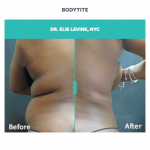 bodytite before and after treatment on back