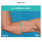 bodytite before and after treatment on arm