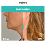 facetite for jaw