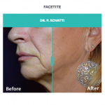 facetite treatment for jaw