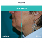 facetite for neck and jaw