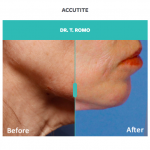 Accutite treatment for jowls