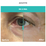 Accutite treatment for eye