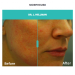 before and after skin and rosacea treatment with morpheus8