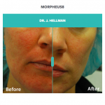 before and after skin pigmentation treatment with morpheus8