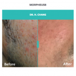 before and after skin treatment on man with morpheus8