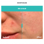 before and after skin and acne treatment with morpheus8
