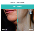 results of Morpheus8 and FaceTite treatment on woman's lower face