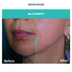 before and after jawline treatment with morpheus8