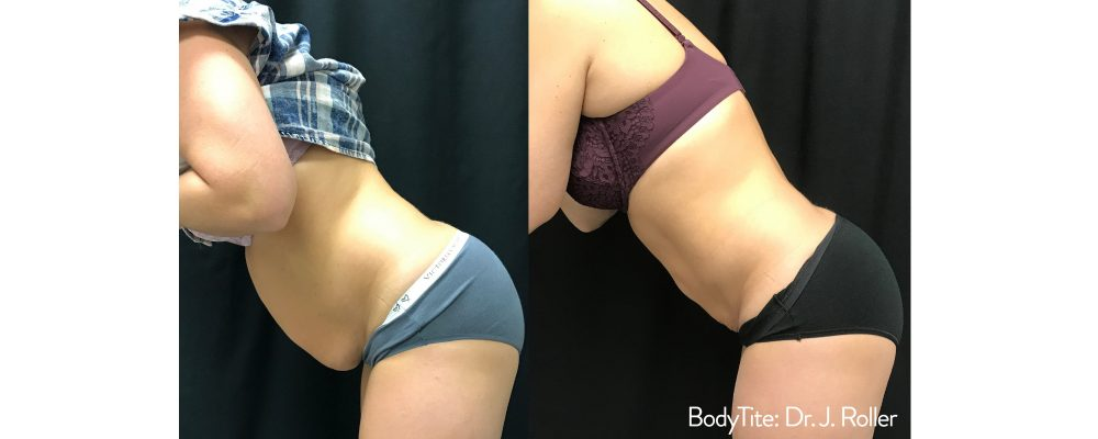 woman showing results of bodytite body contouring treatment for a jelly belly