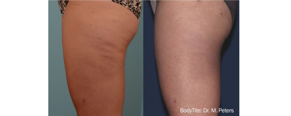 results of a bodytite radio frequency treatment to tighten skin and reduce cellulite in a woman's legs