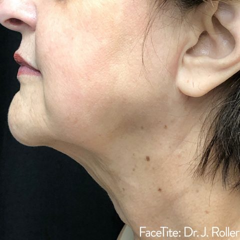 mature woman showing improved definition on her chin after facetite face contouring