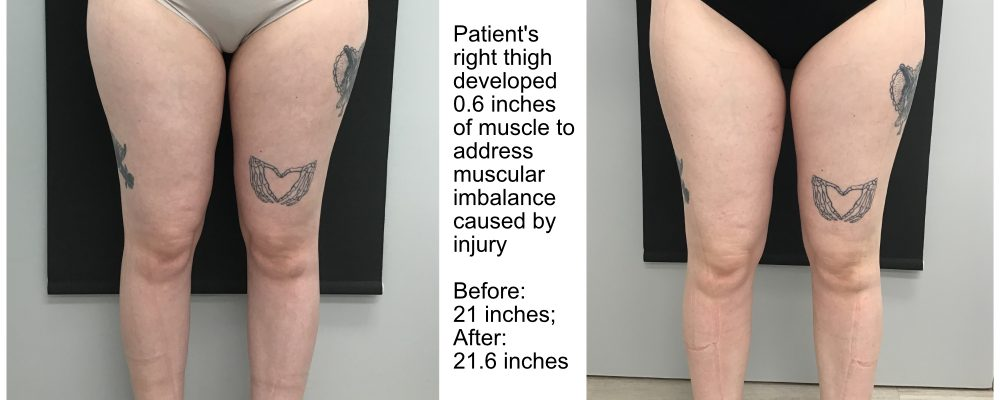 viemax sculpt ems builds muscle in right thigh to address muscular imbalance