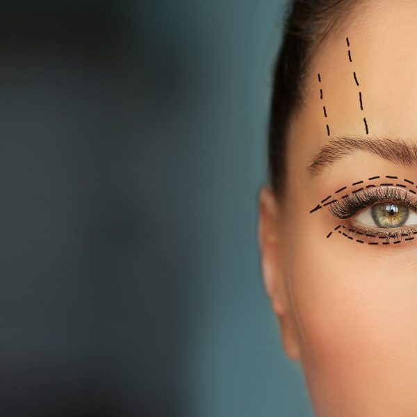 woman with brow or eye lift markings