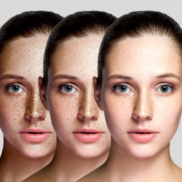 young woman showing benefits of Lumecca treatment for freckles and pigmentation disorders