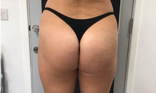 Lisa's GeneFill Butt Lift Case Study