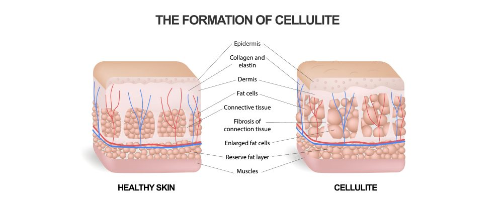 diagram comparing skin with cellulite to healthy skin
