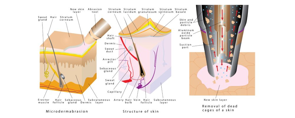 diagram showing benefits of microdermabrasion treatment