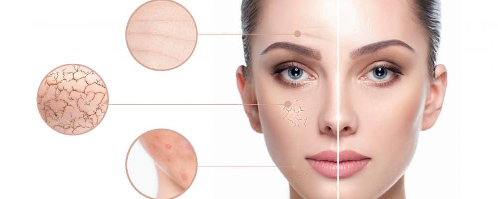 skin analyser showing a variety of skin concerns