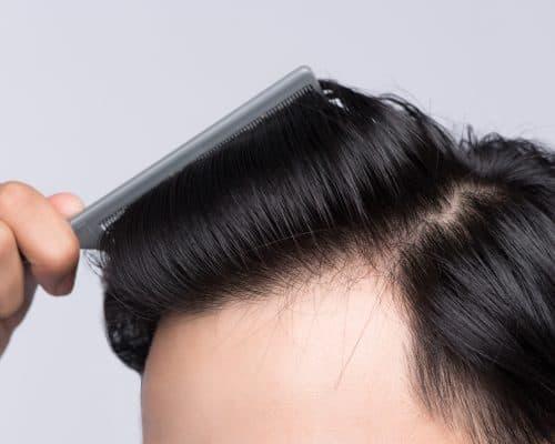 Hair Loss Products