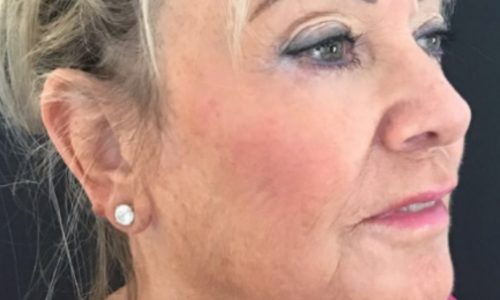Pam's Thread Lift and Filler Case Study