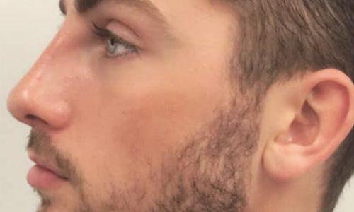 Zak's Non-Surgical Nose Job Case Study