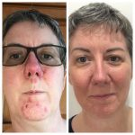 Before and After WOW Facial Vie Aesthetics