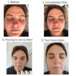 WOW Facial Before and After Vie Aesthetics