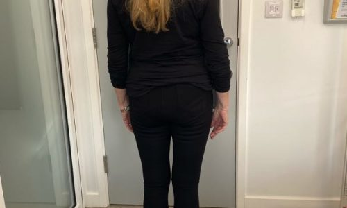 Linda's Case Study for Weight Loss