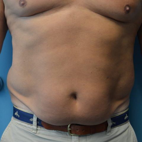 man with flabby stomach before undergoing bodytite radio frequency body contouring
