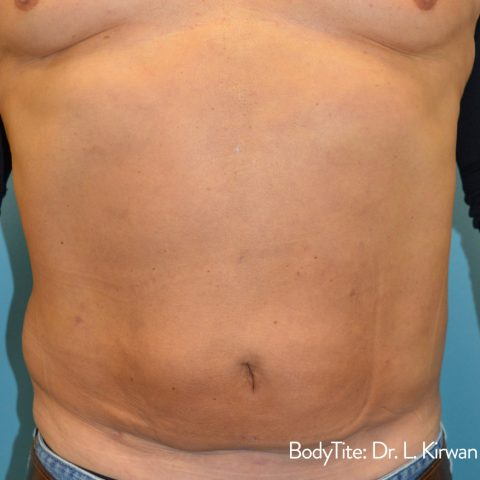 man showing results of bodytite treatment to tone flabby stomach