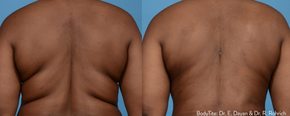 person showing results of bodytite treatment to reduce fat around the back area