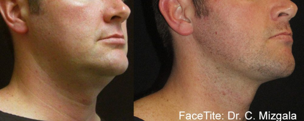 facetite results on a man's jawline and neck to add definition and tighten skin