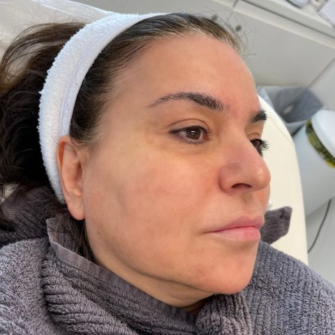 Woman shows off glowing, smooth skin after having the DIBI Gold Leaf Facial skincare treatment at Vie Aesthetics