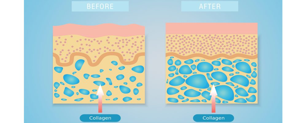 before and after illustration of lanluma collagen treatment on the skin