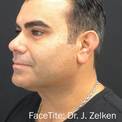Man showing more defined jaw and chin after facetite radio frequency treatment
