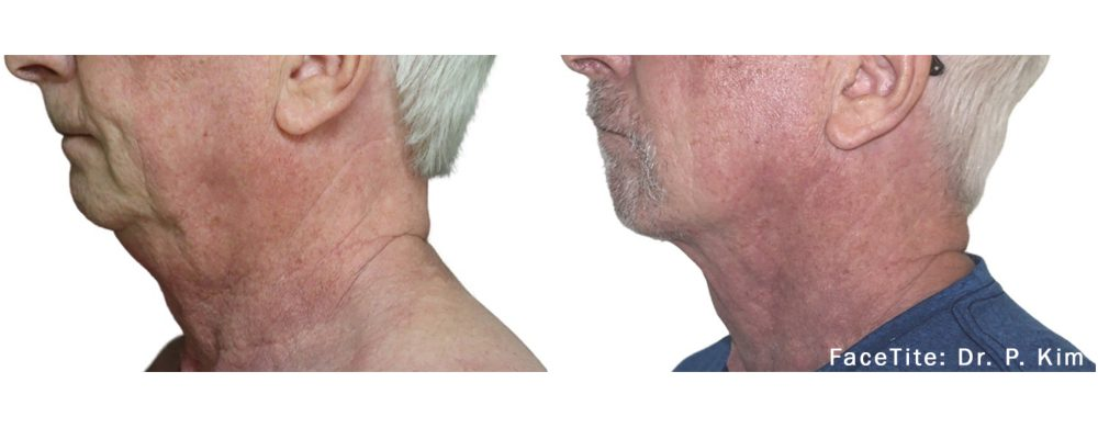 facetite adding definition to a mature man's chin before and after photos