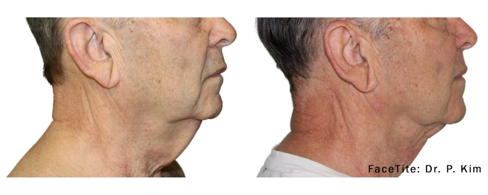 facetite treatment for a mature man to resolve sagging skin on the neck