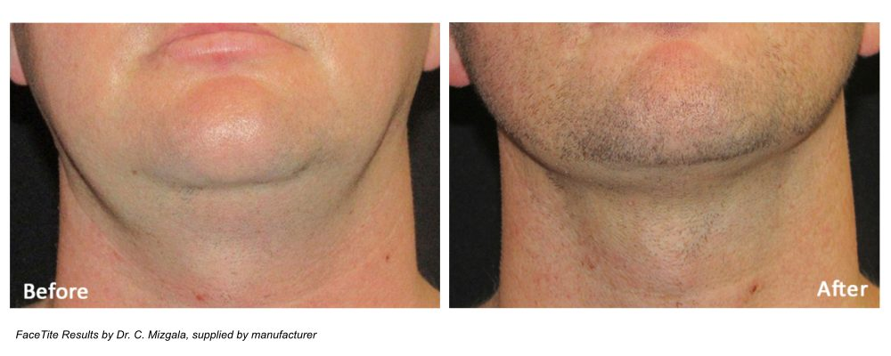 facetite for men results on double chin and jawline