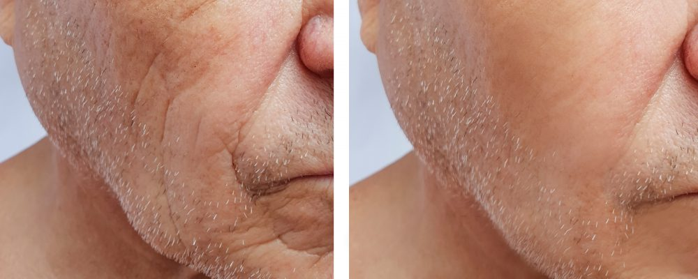 before and after images illustrating the results of filler and collagen treatments on the face