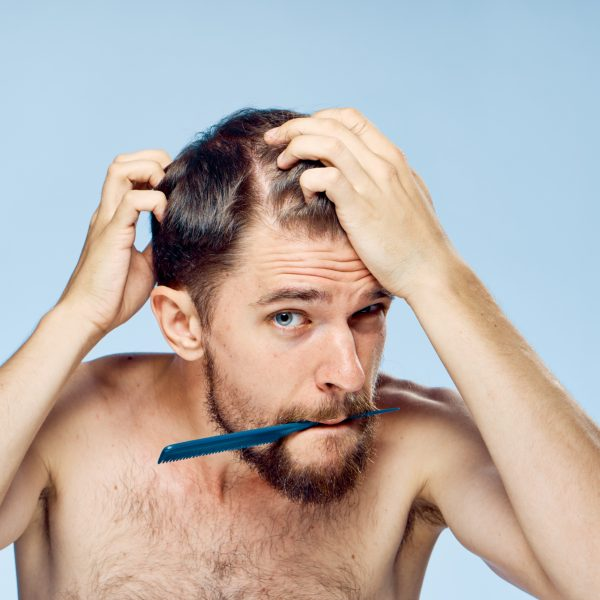 young man noticing early signs of hair loss